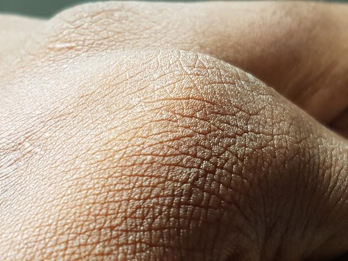 Skin, by Logor